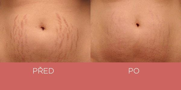 Fotky před a po - krém na strie - břicho