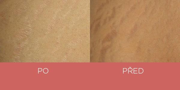 Fotky před a po - krém na strie - jizvy