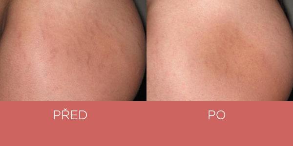 Fotky před a po - krém na strie - zadek