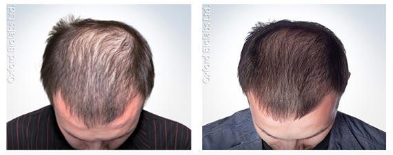 tablety na růst vlasů
